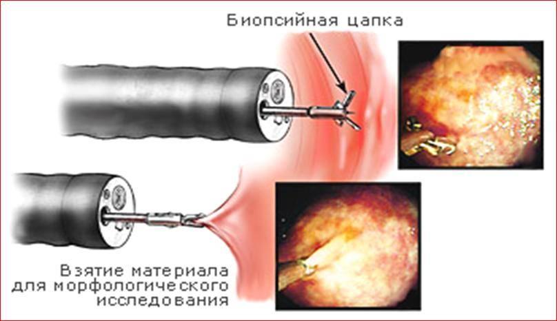 Биопсия ЖКТ в Москве цена